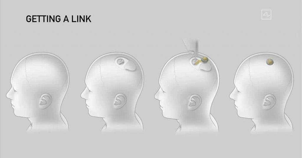 prototype of Neuralink brain implant